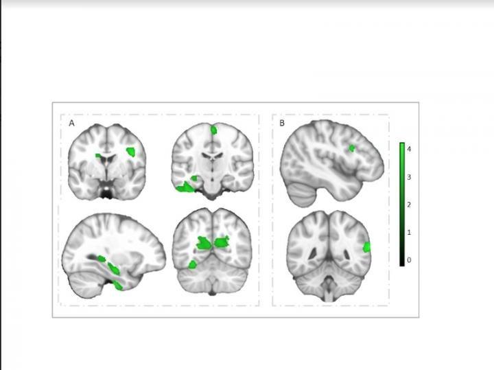 Gehirn Fitness Studie
